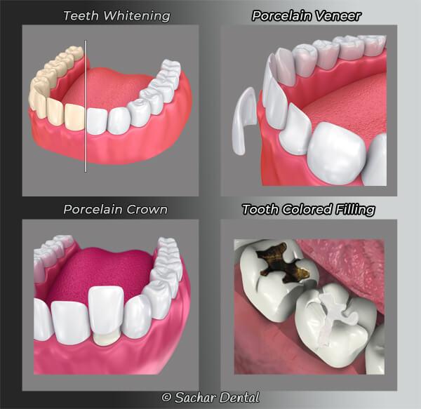 Cosmetic Dentistry NYC diagram