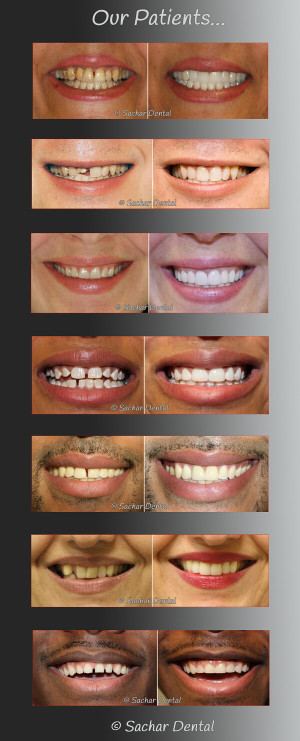 Cosmetic Dentist NYC for Smile Makeovers