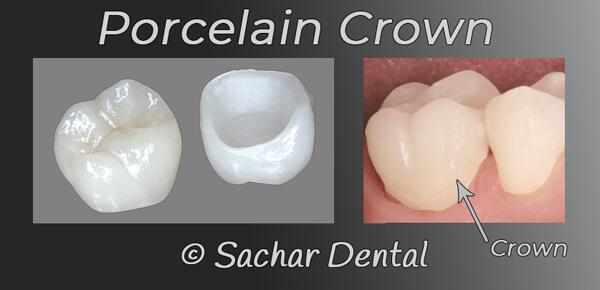 Cosmetic Dentist NYC porcelain crown diagram