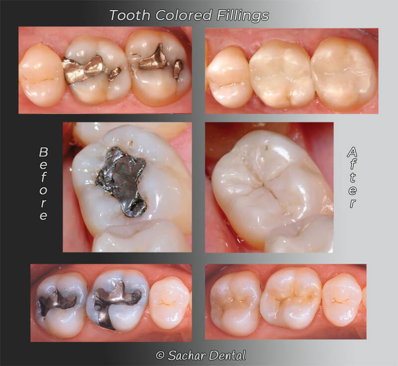 Cosmetic Dentist NYC for tooth colored fillings