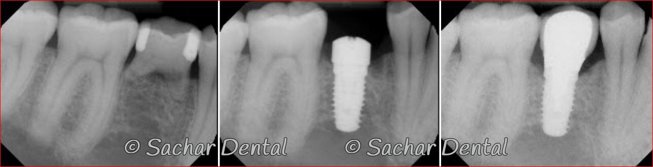 Dental Implant Specialist NYC