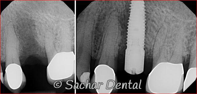 Top Dental Implants NYC