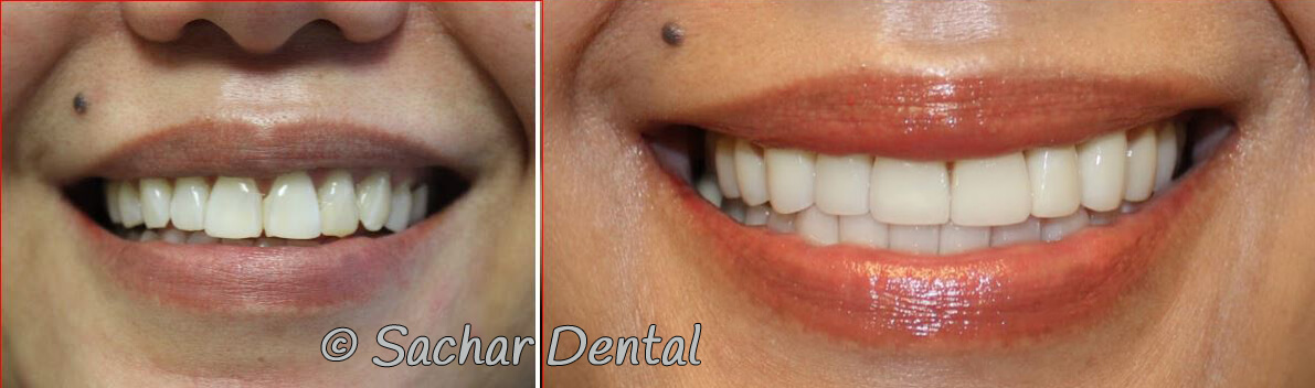 Top Cosmetic Dentist New York City - Sachar Dental NYC