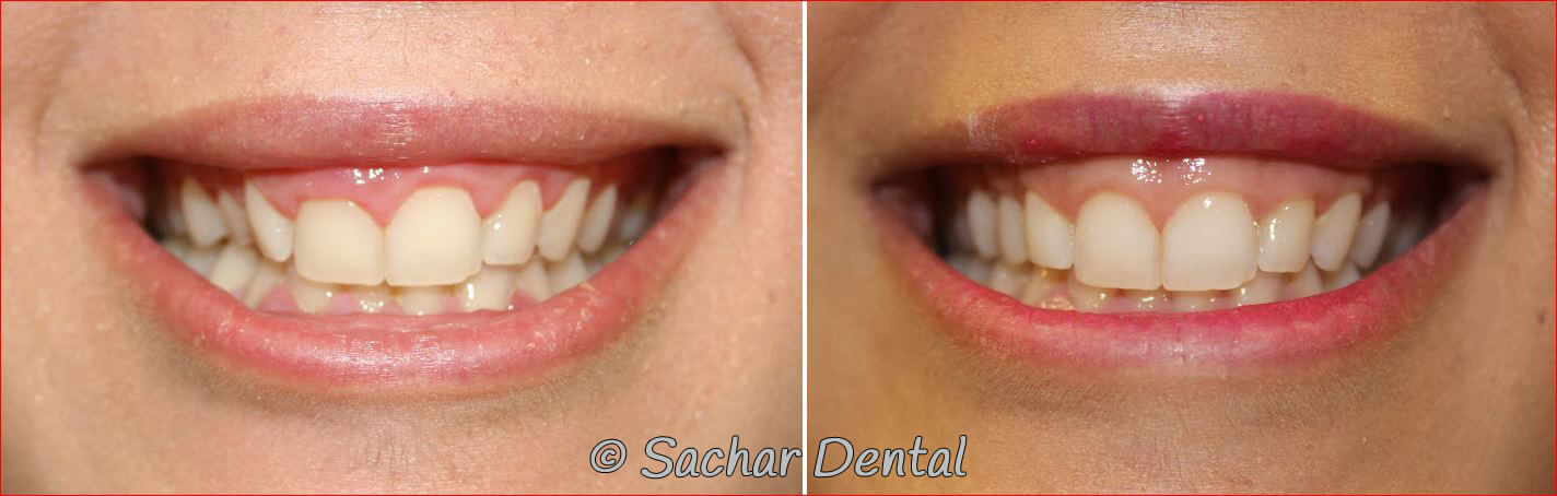 Before and after pictures of cosmetic gum lifts and porcelain veneers