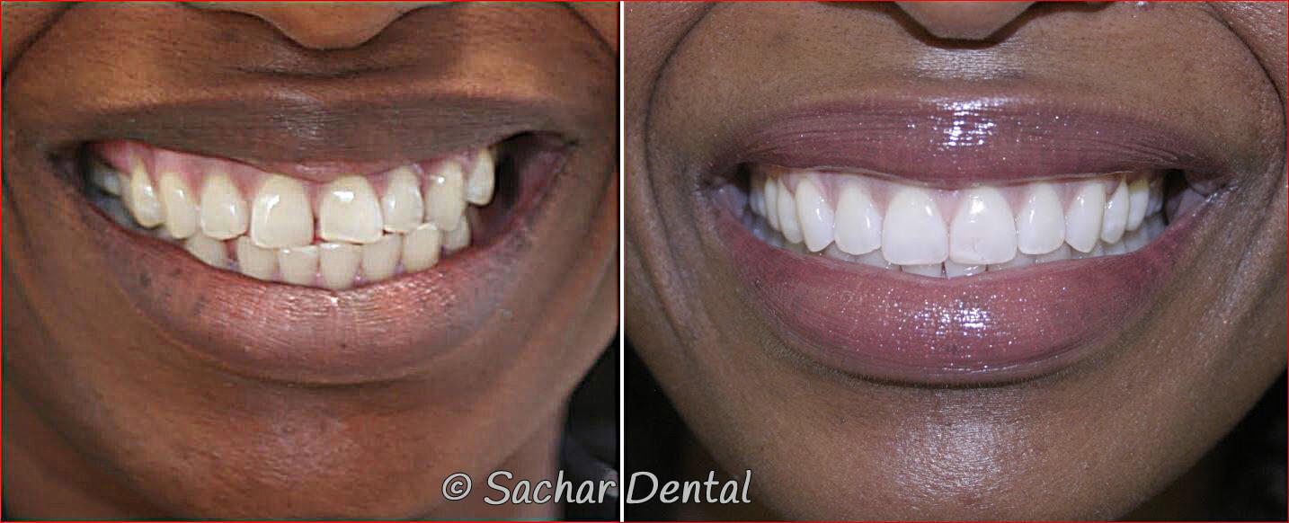Top Invisalign Dentist NYC