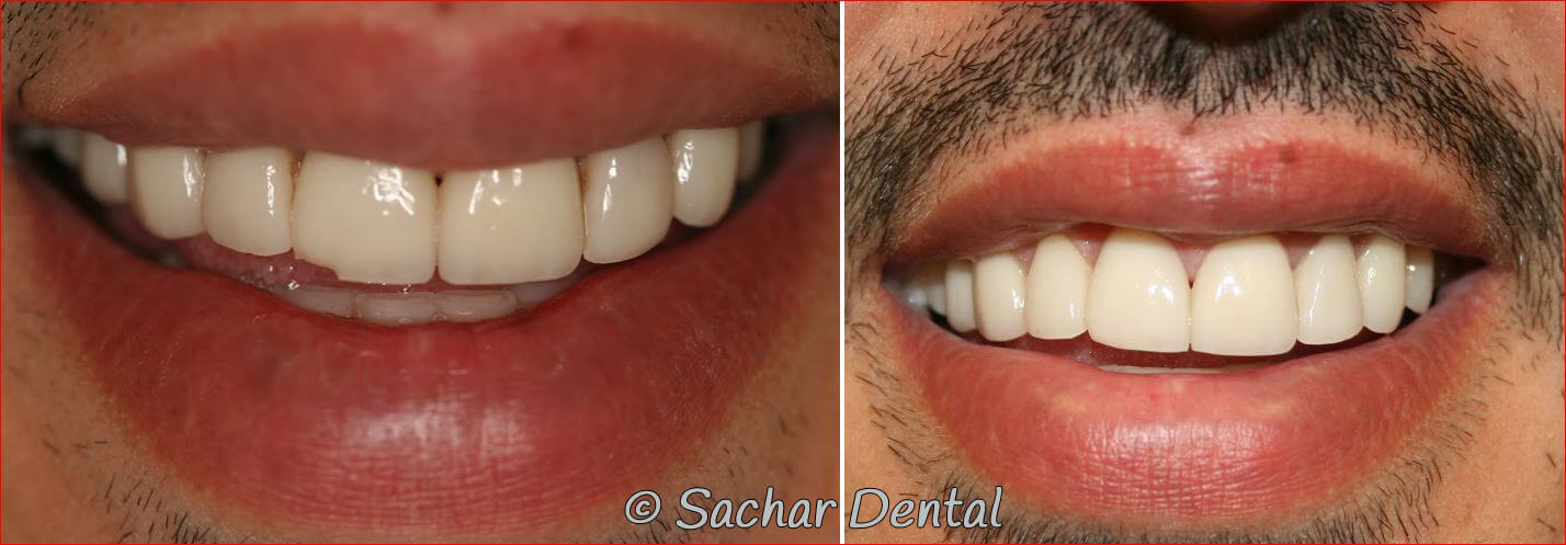 Before and after pictures of chipped porcelain veneer
