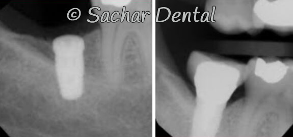 Picture of Before and after x-rays of dental implants at Sachar Dental NYC