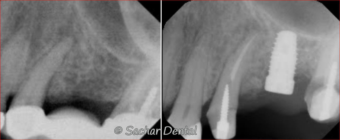 Before and after x-ray showing dental implant replacing an old failing bridge