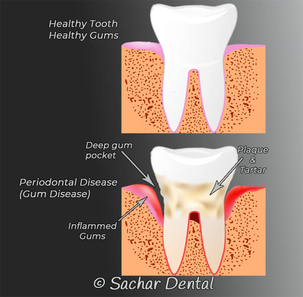 Teeth cleaning vs Deep cleaning