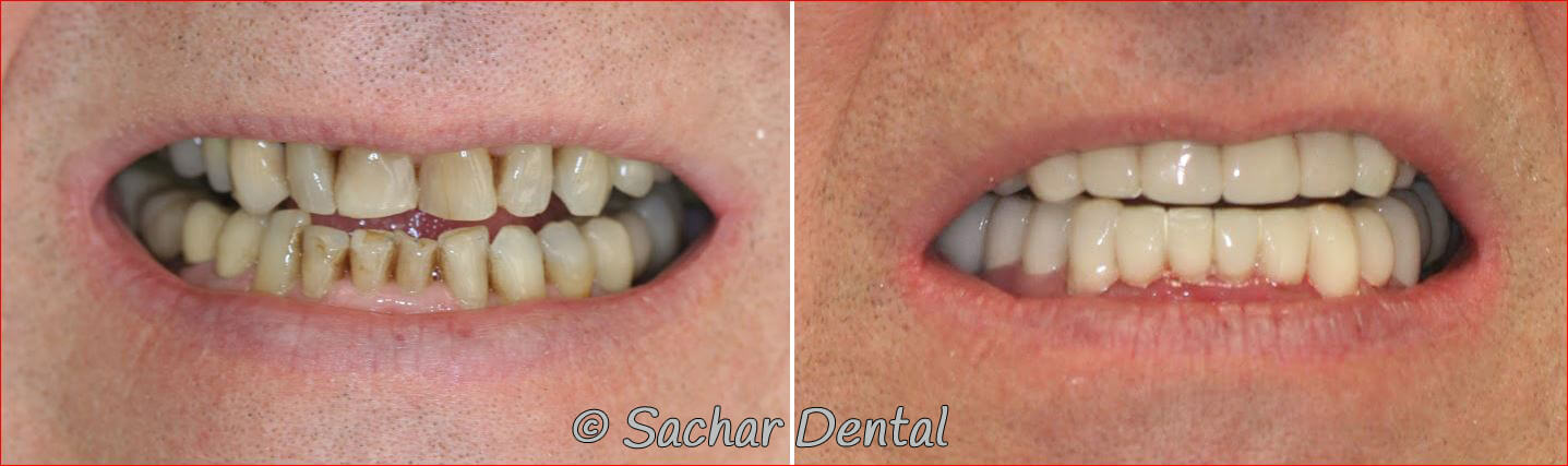 Before and after pictures of full mouth reconstruction with porcelain crowns, porcelain veneers, dental implants