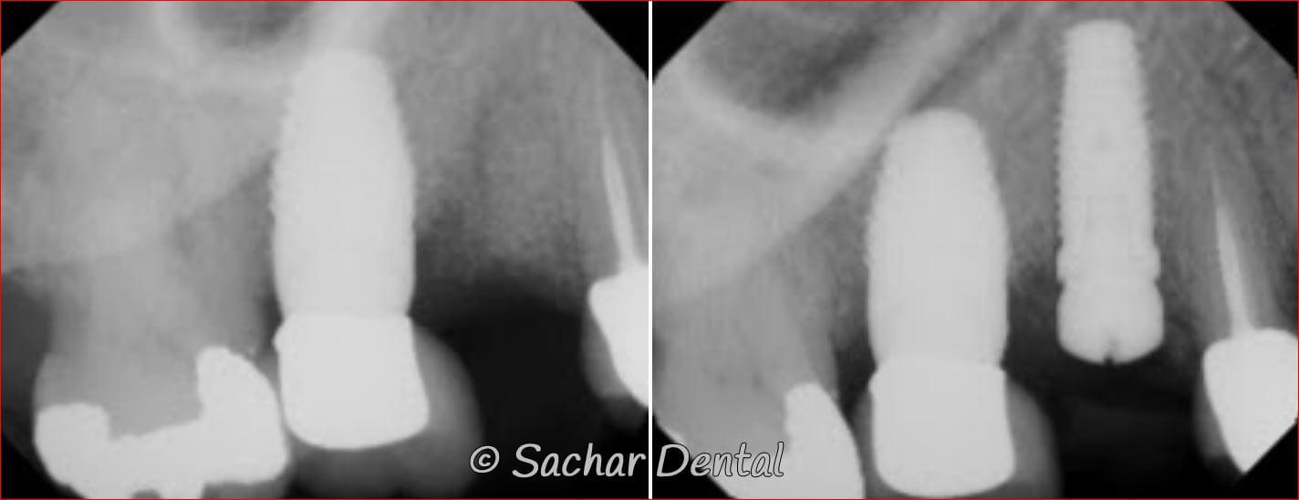 NYC Dental Implants Specialist
