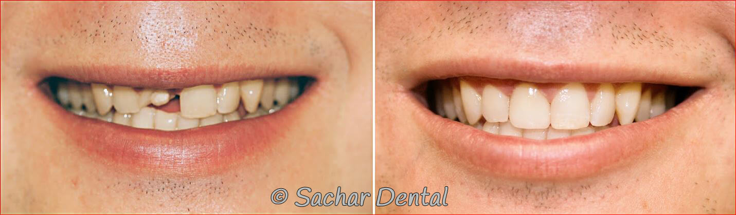 Before and after pictures Cosmetic Dentistry NYC
