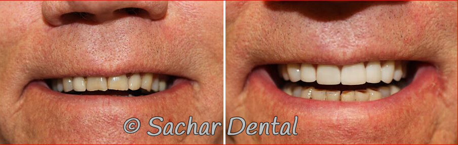 Best Cosmetic Dentist NYC.