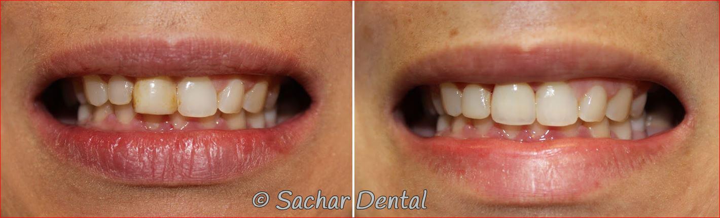 Top Manhattan Cosmetic Dentists