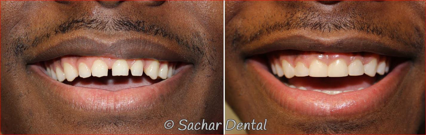 Manhattan Cosmetic Dentist