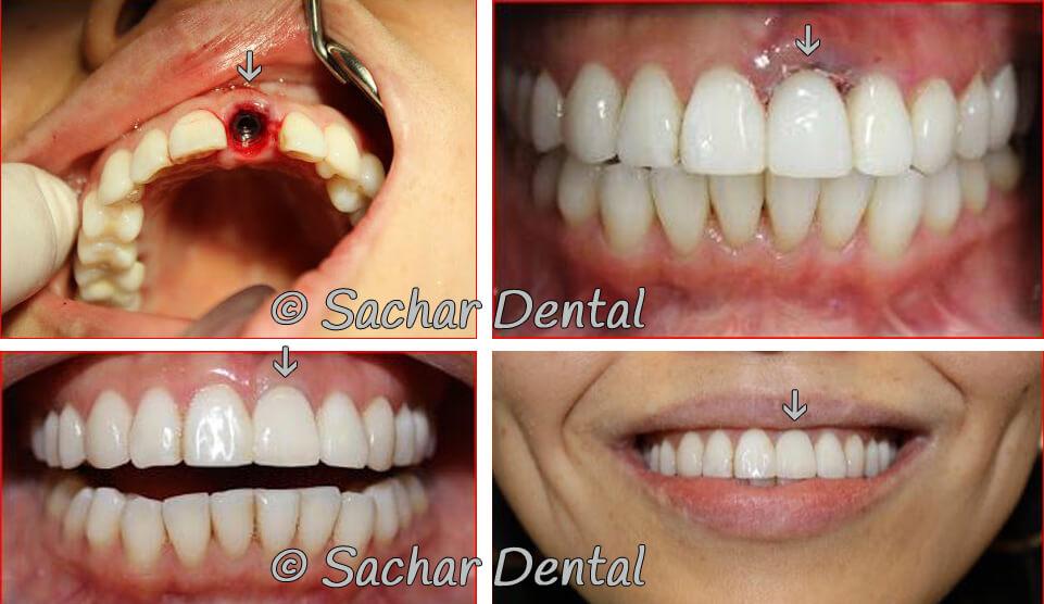 Dental Implants at Sachar Dental NYC