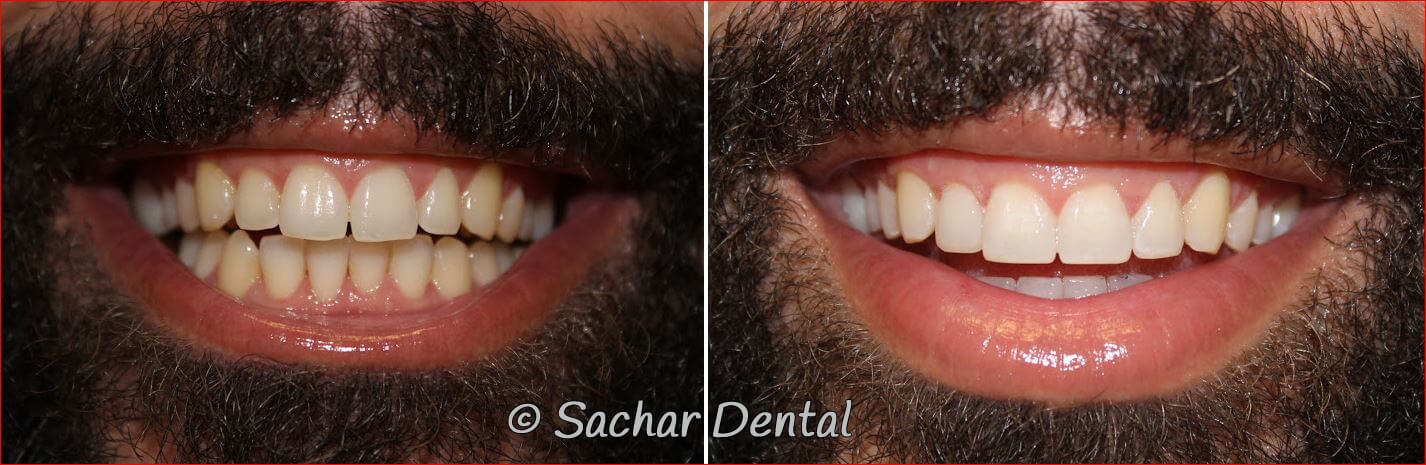Before and after pictures of resin bonding veneers