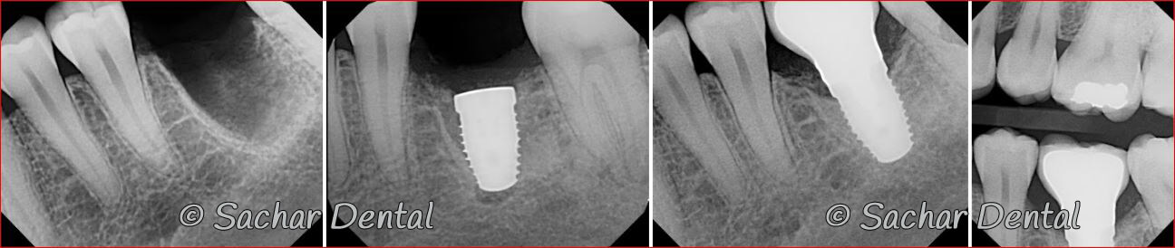 Picture of Before and after x-rays of tooth extraction and dental implant plus bone graft