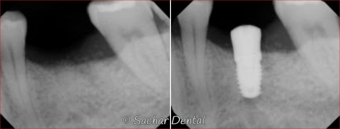 All on 4 Dental Implants NYC