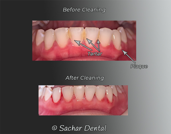 Dentist NYC for teeth cleaning