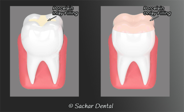 Dentist NYC for Inlays Onlays