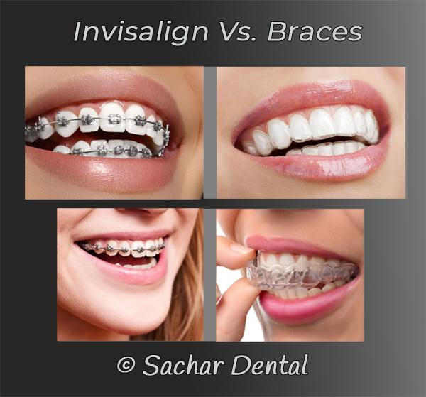 Picture of comparing metal braces to Invisalign