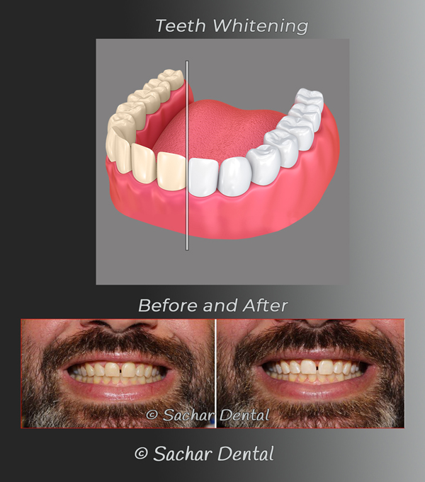 Teeth whitening diagram and picture Sachar Dental NYC
