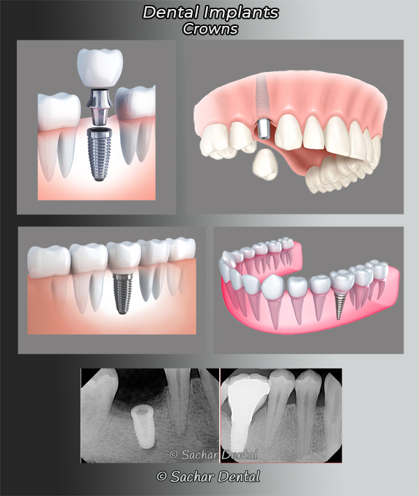Picture of diagrams and x-ray of crowns attached to dental implants