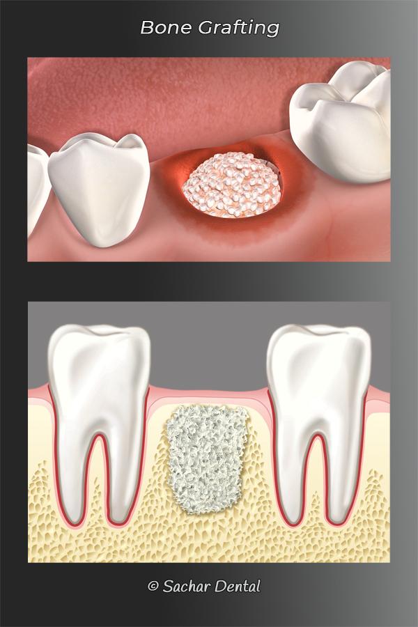 Picture of 2 diagrams explaining periodontal bone grafting for dental implants