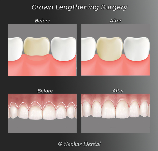 Picture of diagrams explaining periodontal crown lengthening surgery