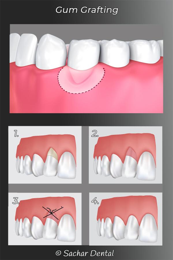 Picture of diagrams explaining periodontal gum grafting