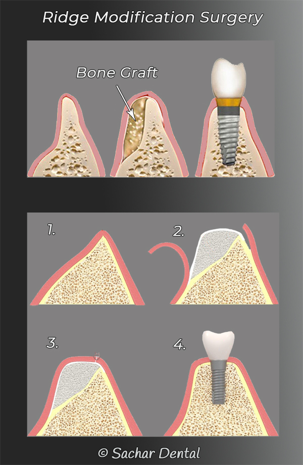 Picture of diagrams explaining periodontal ridge modification surgery