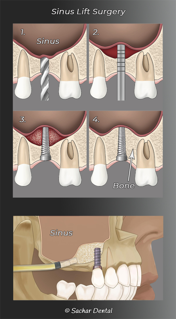 Picture of diagrams explaining periodontal sinus lift surgery and bone graft