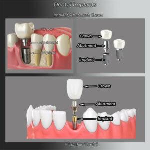 Dental implant NYC blog